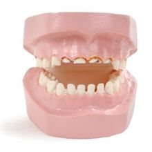 Baby Bottle Tooth Decay Model